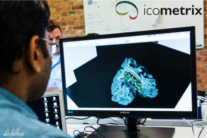Brain imaging AI startup Icometrix raises $18 million in new funding to transform care for patients with brain disorders and injuries