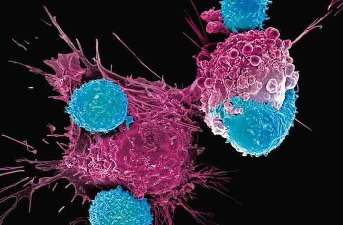 First Patient With Advanced Breast Cancer Receives First Dose in Clinical Trial of GlycoMimetics' GMI-1359
