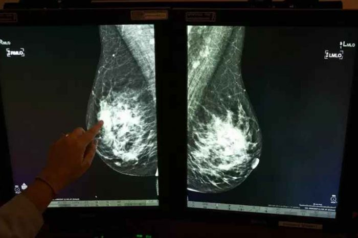 Google AI Beats Doctors at Breast Cancer Detection—Spots Breast Cancer Missed by Human Eyes