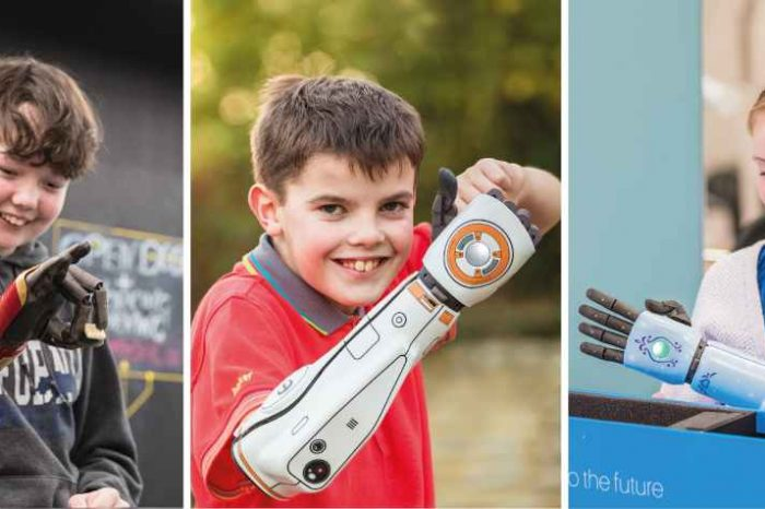 A Wisconsin boy drinks juice with his right hand for the first time using a 3D-printed bionic arm developed by UK robotics startup Open Bionics
