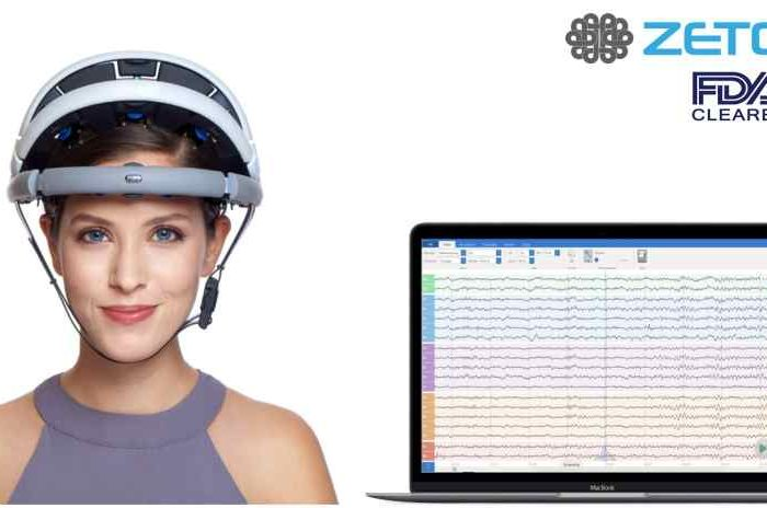 Healthtech startup Zeto raises $7.3M Series A funding to transform EEG for hospitals with its wireless, zero-prep electrode headset