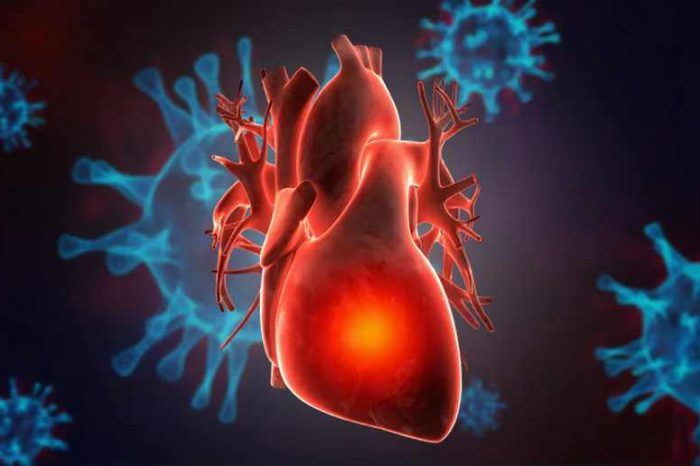 Evidence grows stronger that Covid vaccine is linked to heart issue called myocarditis, especially in young adults, CDC says